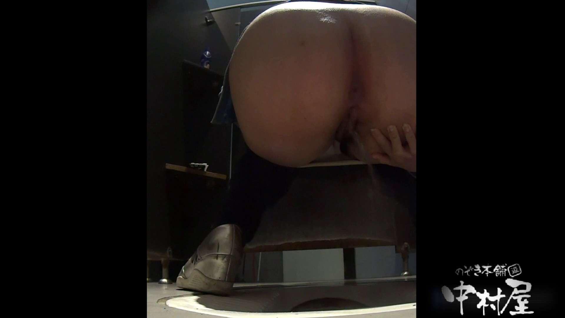 お尻に出来てるオデキがキュート 大学休憩時間の洗面所事情20 美女のカラダ セックス無修正動画無料 12pic 3